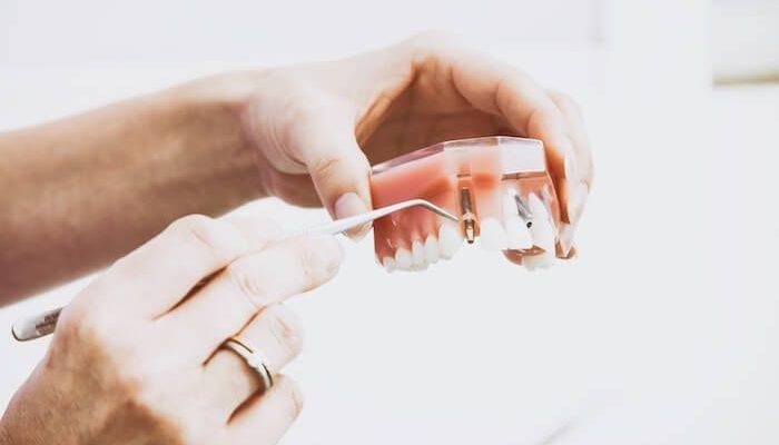 Ilgalaike-dantu-implantu-osteointegracijos-periodont