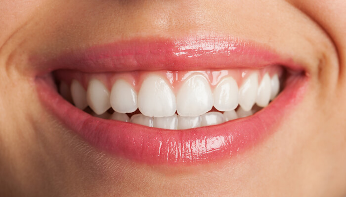 periodont-dantu-balinimas
